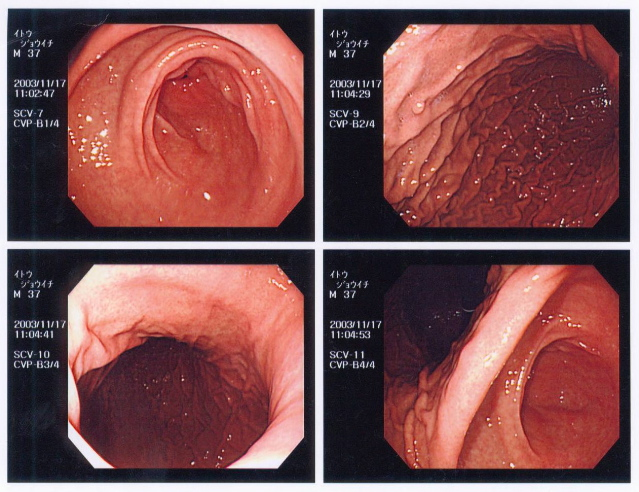 external image stomach.jpg